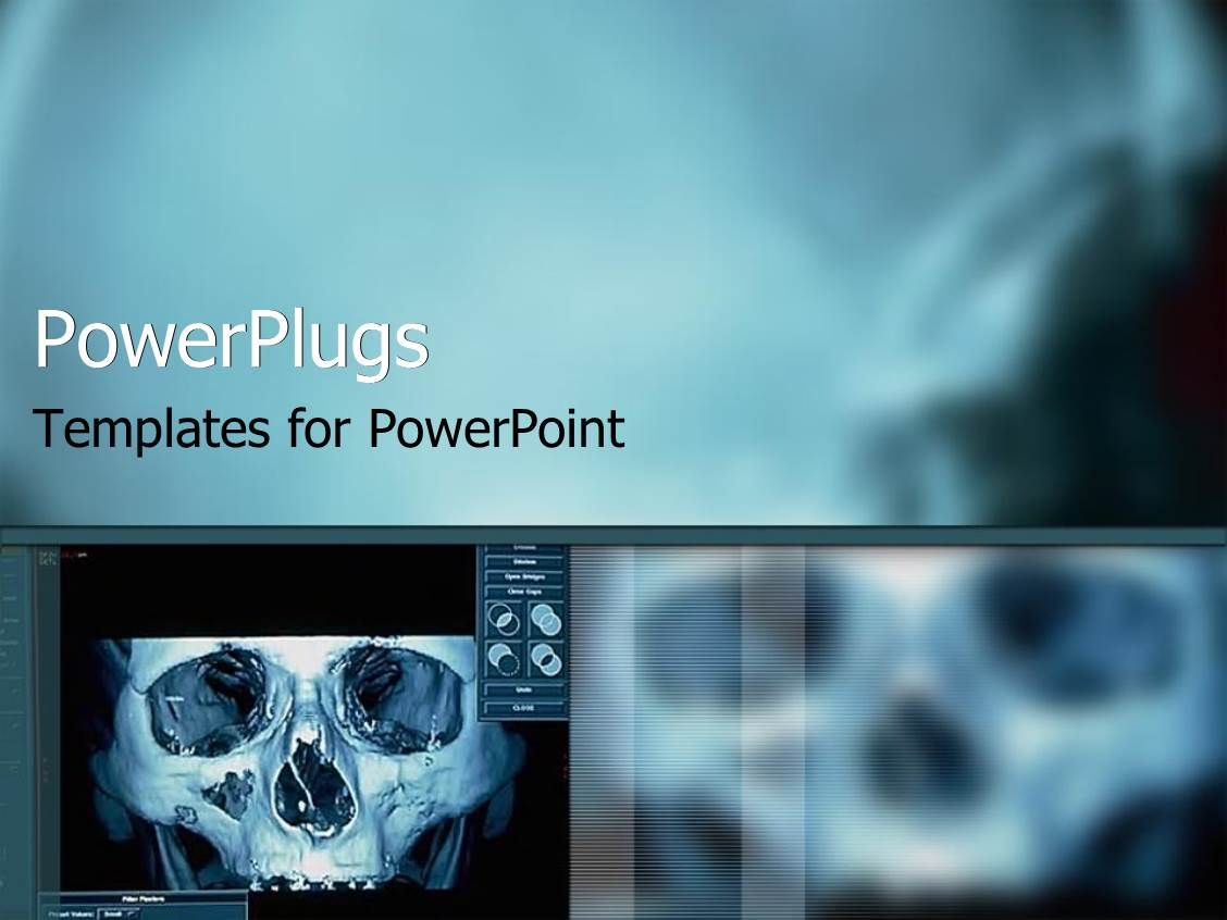 powerpoint templates x ray image collections powerpoint