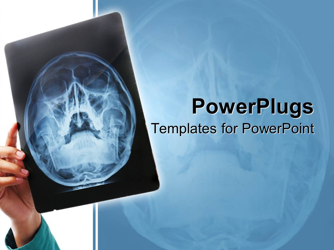 Powerpoint template hand holding up x ray scan of human skull for powerpoint template displaying hand holding up x ray scan of human skull for examination toneelgroepblik Choice Image